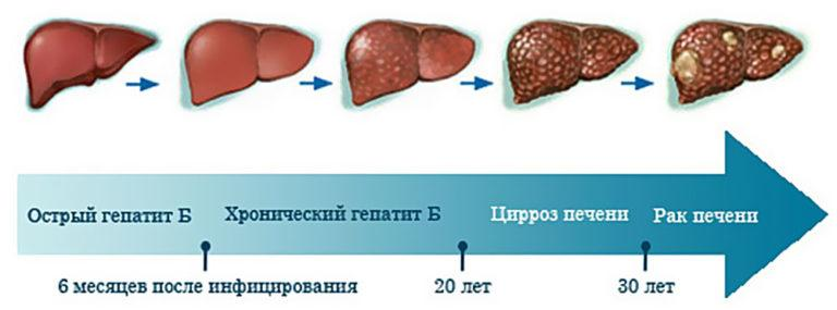 Гепатит с у мужчин симптомы и лечение