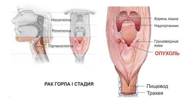 1 стадия рака горла