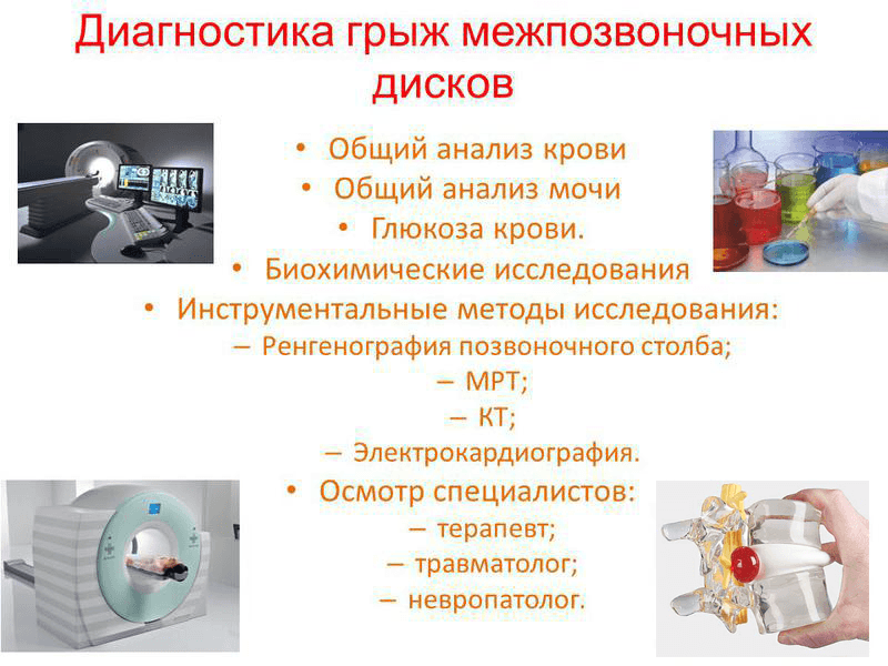 Диагностика грыж межпозвоночных дисков