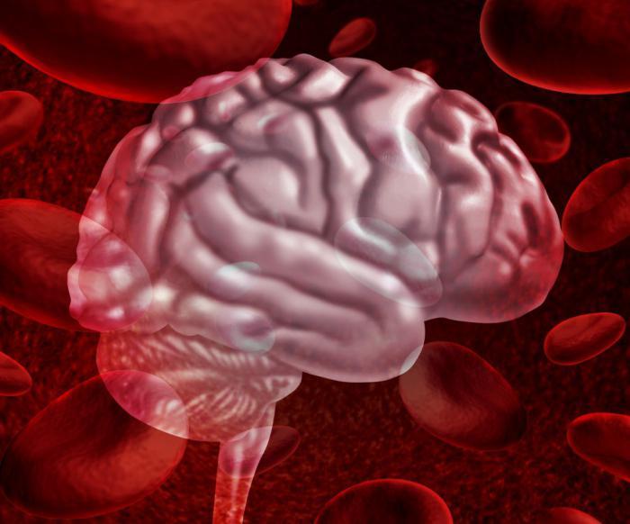 Кровоизлияние в мозг: причины и лечение