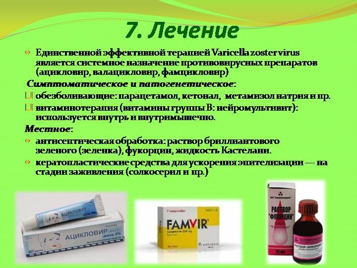 Герпес Зостер: симптомы и лечение - подробная информация
