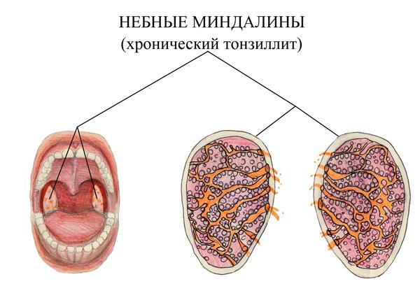 Небные миндалины при хронической тозиллите