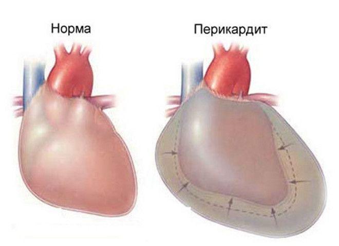 Нормальное сердце и сердце при перикардите