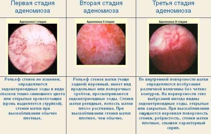 Описание стадий аденомиоза