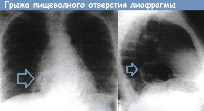 Рентгенография органов грудной клетки при грыже пищеводного отверстия диафрагмы