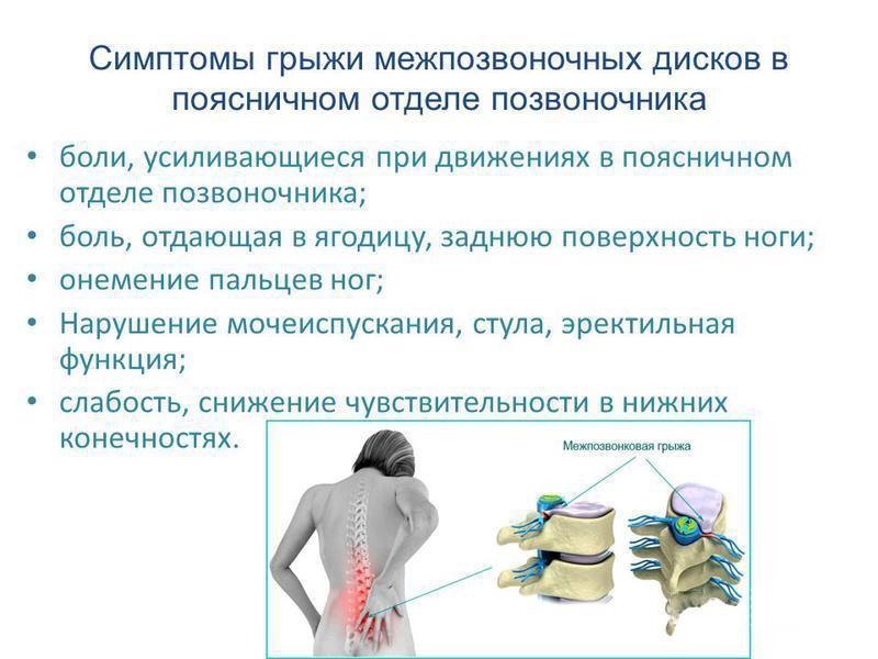 Симптомы грыжи межпозвоночных дисков в поясничном отделе позвоночника