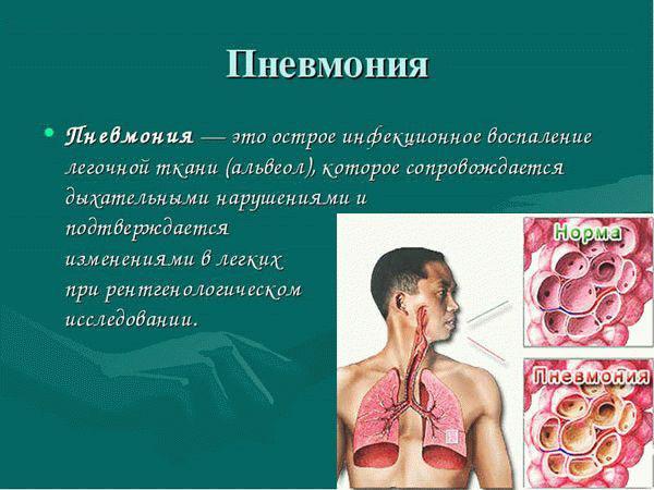 Как выявить пневмонию в домашних условиях у взрослых
