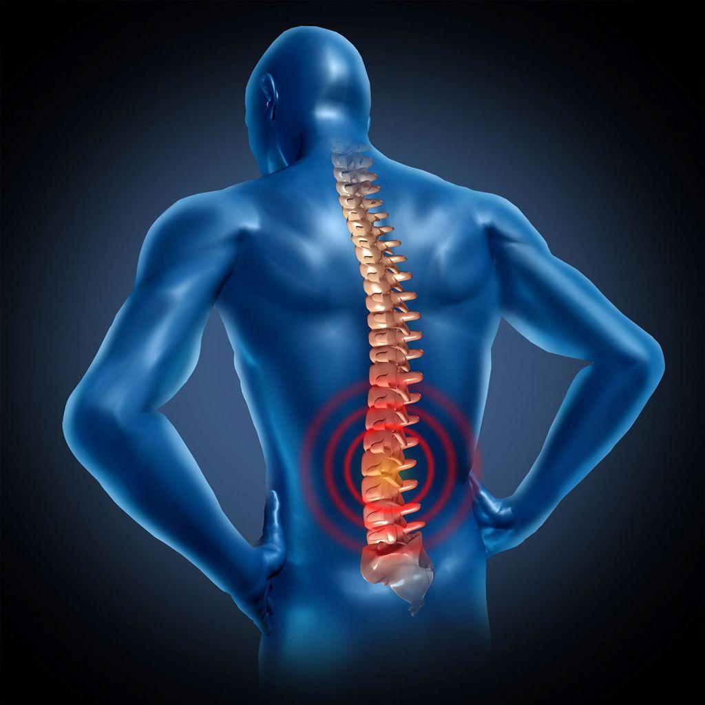 Cимптомы межпозвоночной грыжи поясничного отдела позвоночника