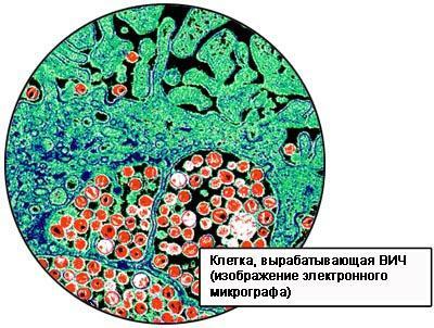 ВИЧ-инфекция: симптомы у мужчин