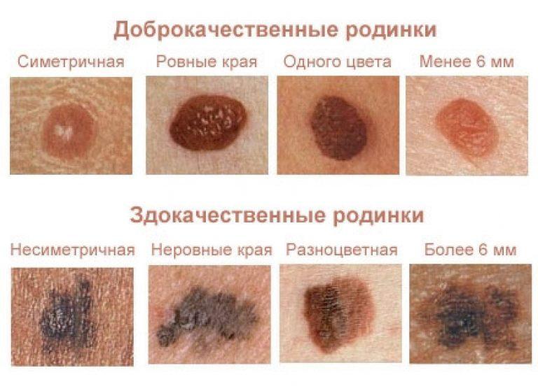 Лечение бородавок нашатырным спиртом