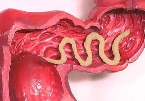 Какими анализами можно определить паразитов в организме
