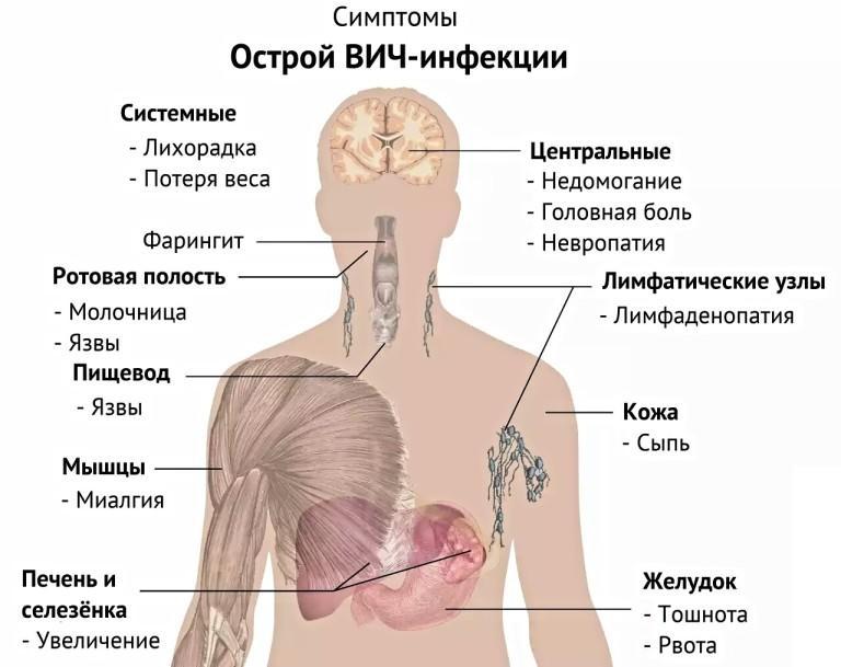 Симптомы острой ВИЧ-инфекции