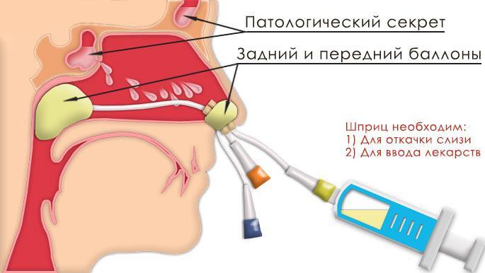 Схема ямик-катетера в носовой полости