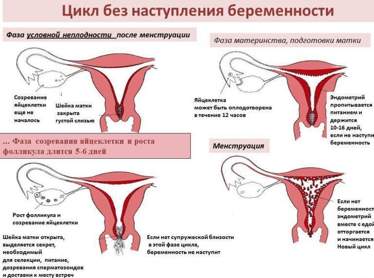синдром вагинальных выделений-зц1