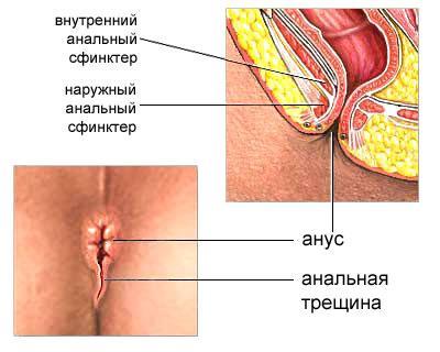 Мази от геморроя гепароид лечива