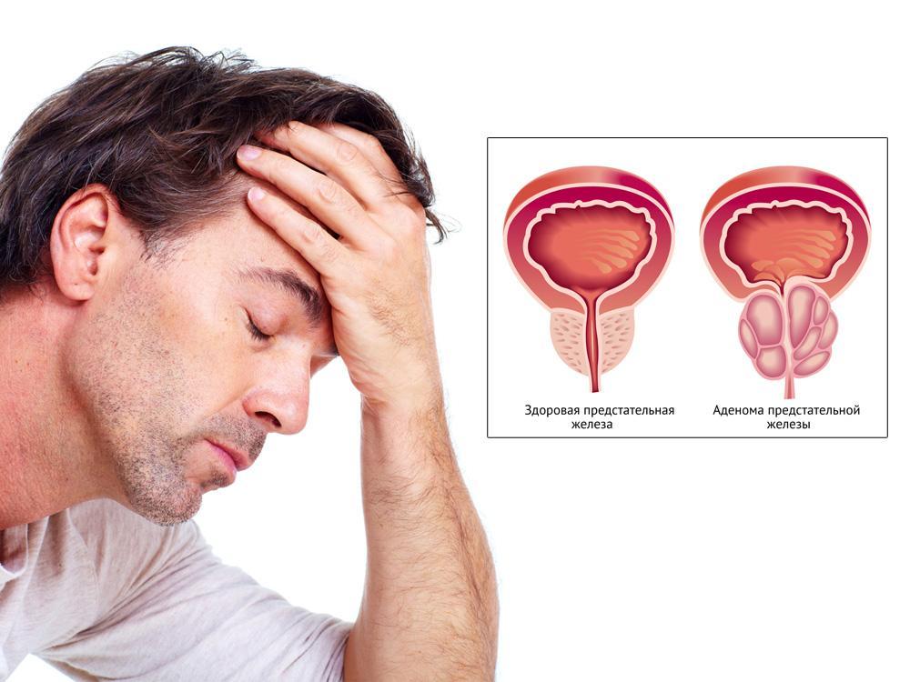 отзывы о лечении холестерина народными средствами