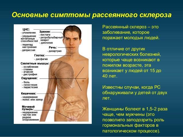 Рассеянный склероз симптомы и лечение в домашних условиях
