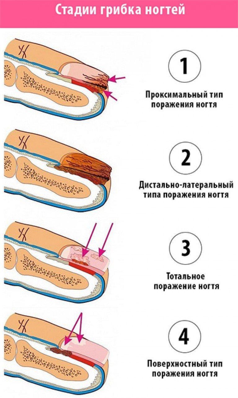 Лечение грибка ногтей уколами