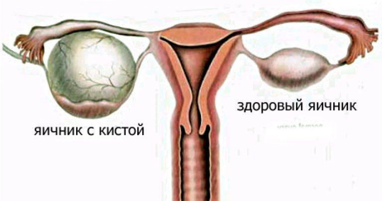 Чем опасна киста яичника у женщин - подробная информация