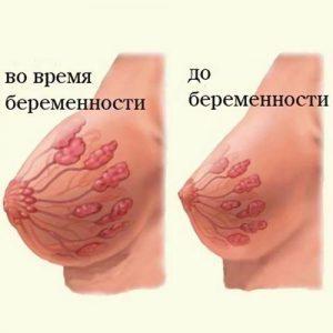 Грудь то болит то нет на ранних сроках беременности