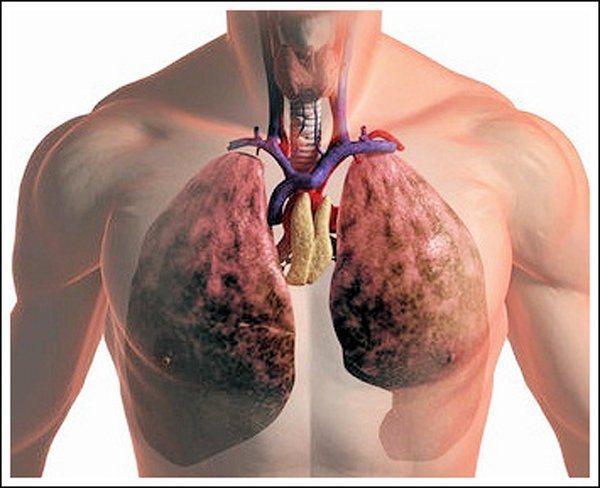 Как можно лечить народными средствами рак легкого
