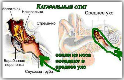 Боль в ухе причины симптомы лечение народные средства