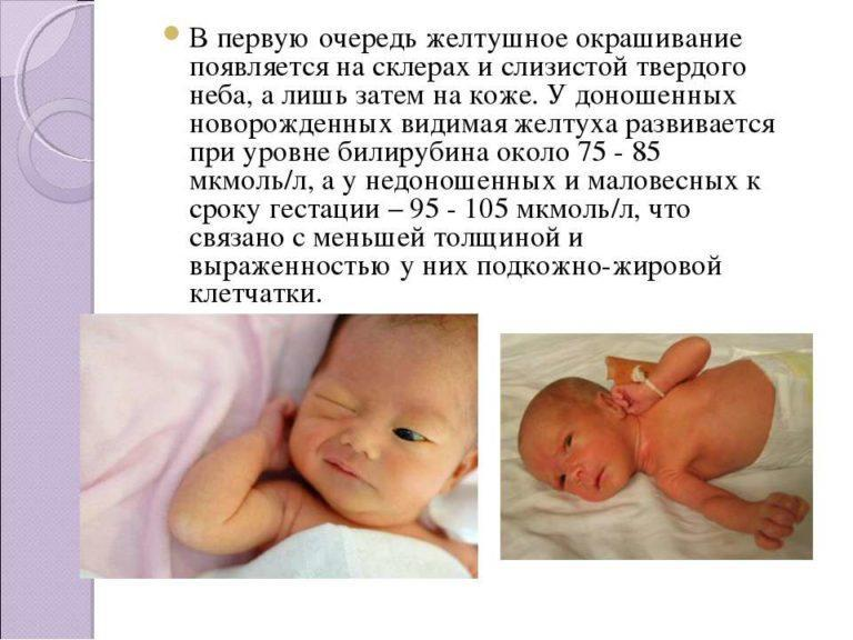 какого цвета склеры у новорожденного
