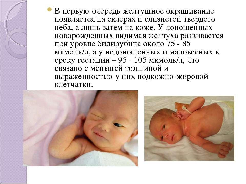 Желтушка у новорожденных причины как лечить