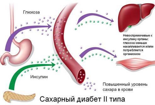 Кашель при диабете: лекарства, сиропы, таблетки