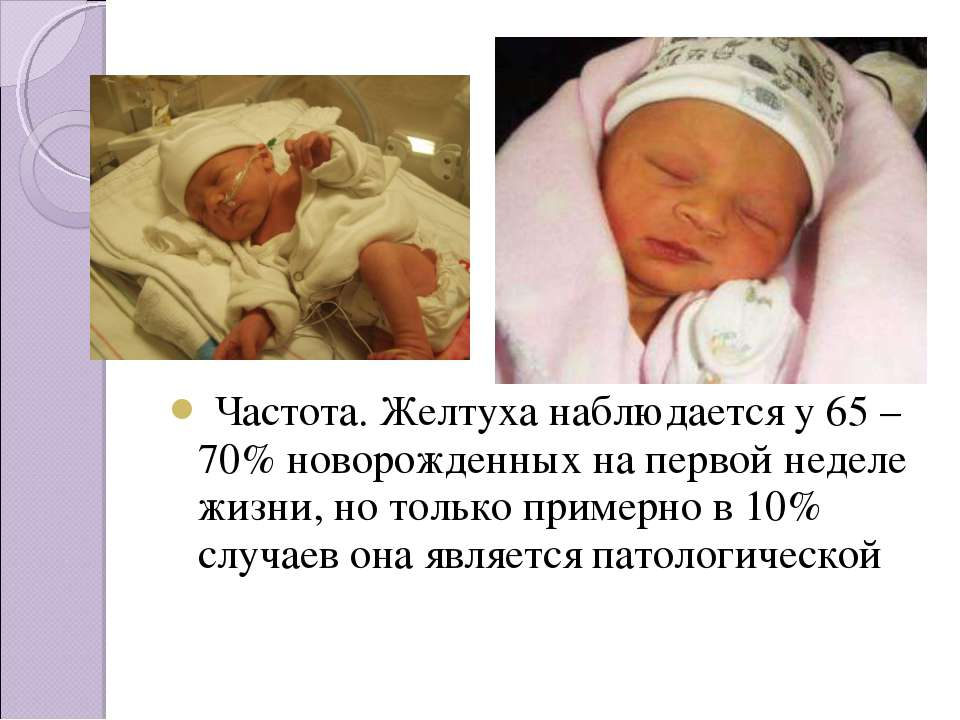 Как вылечить желтушку у новорожденных в домашних условиях