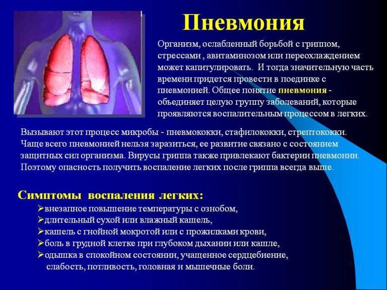 Пневмония симптомы уход