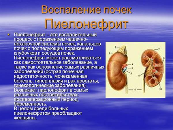 Хронические заболевания почек у беременных