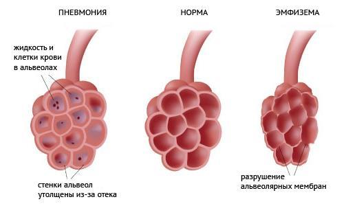 Пневмония как лечиться в домашних условиях
