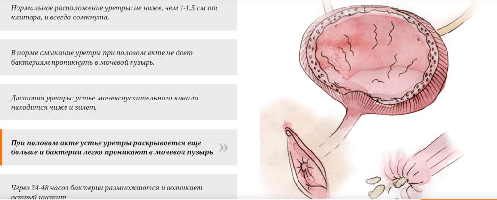 Лечение кишечной палочки