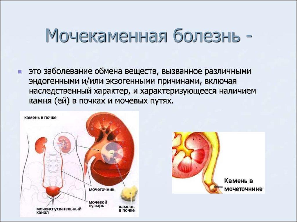 Мочекаменная болезнь у домашних условиях