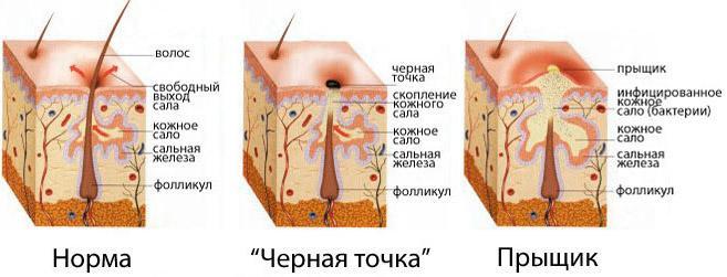bolshoy-prish-na-intimnom-meste