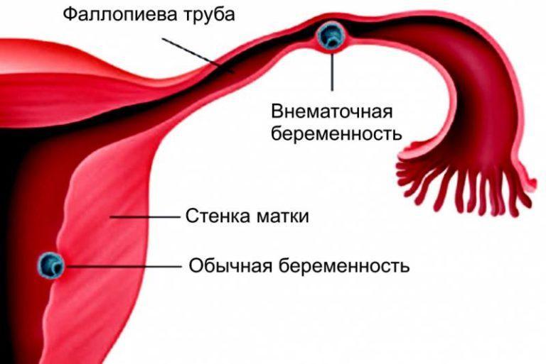 Отличить обычную беременность внематочной беременности