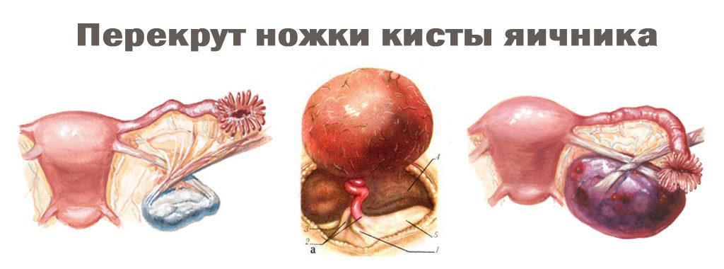 Киста в яичнике: лечение или операция?