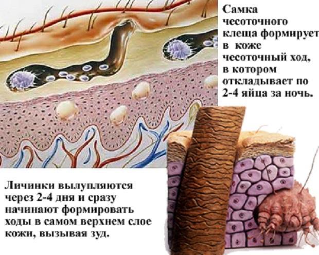 Лечение заболеваний кожи в домашних условиях