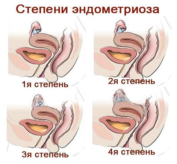 Причины эндометриоза у женщин - признаки и симптомы, лечение