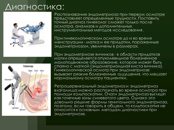 Эндометриоз яичника: симптомы и лечение - классификация, стадии и методы терапии