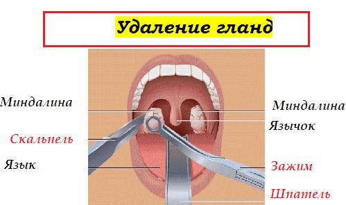 Как удалить гной из миндалин при ангине