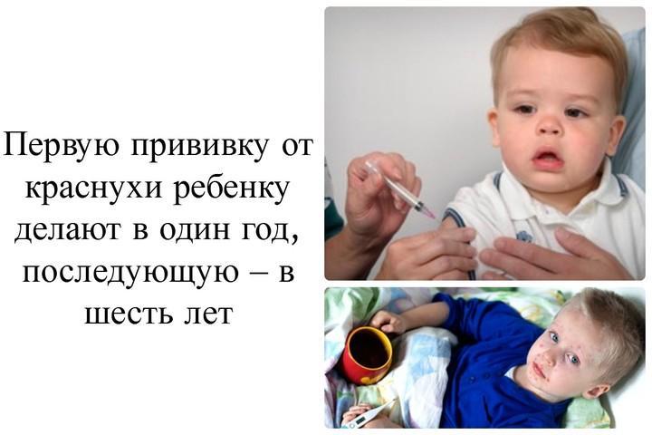 Повторная прививка от краснухи