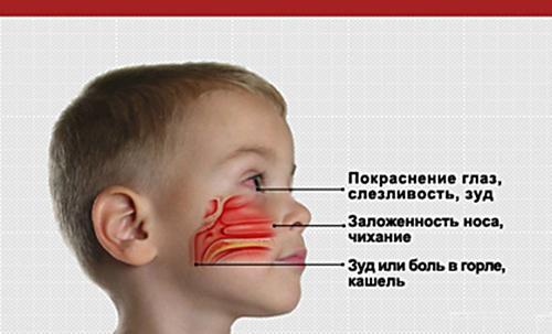 Как лечить ребенку больное горло? - Вопросы