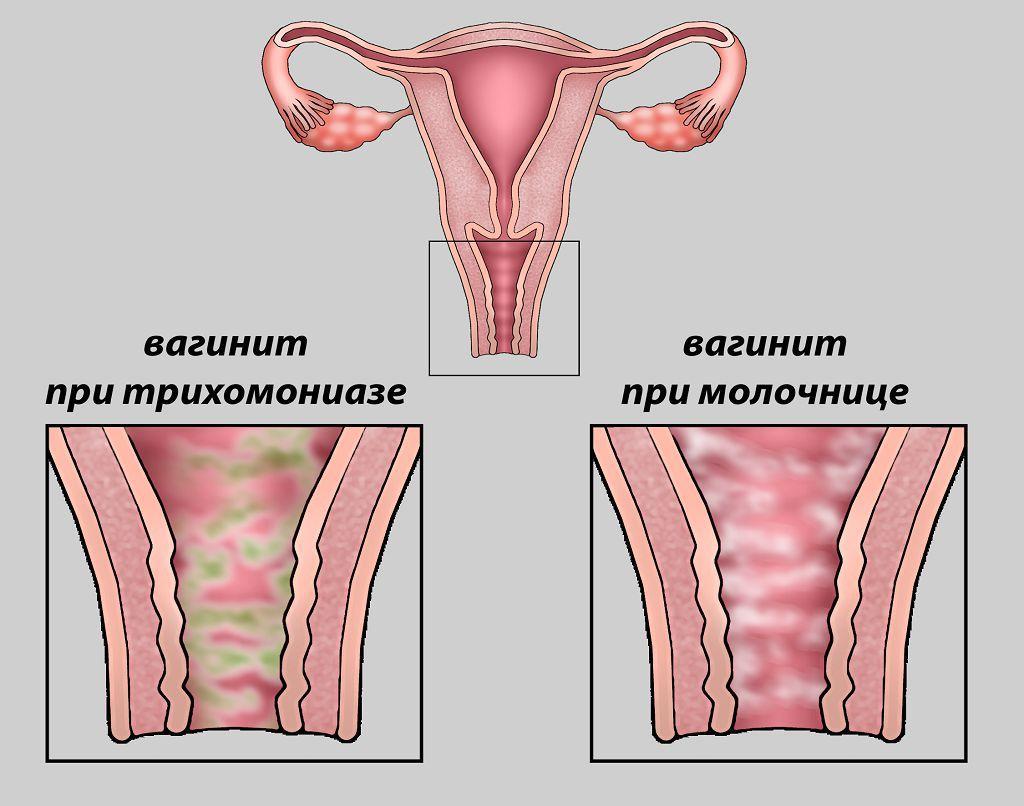 Кольпит при беременности почему возникает