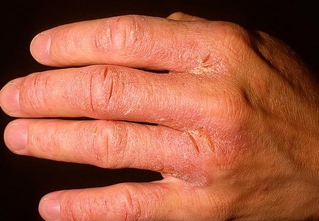 Потрескавшаяся кожа рук лечение