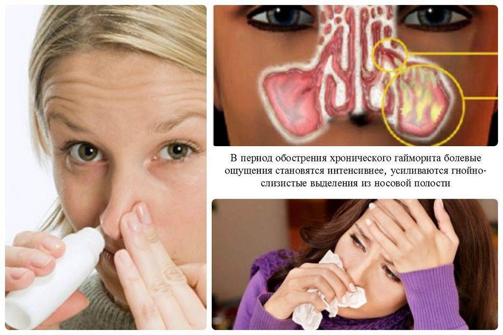Синусит чем лечить беременным 18