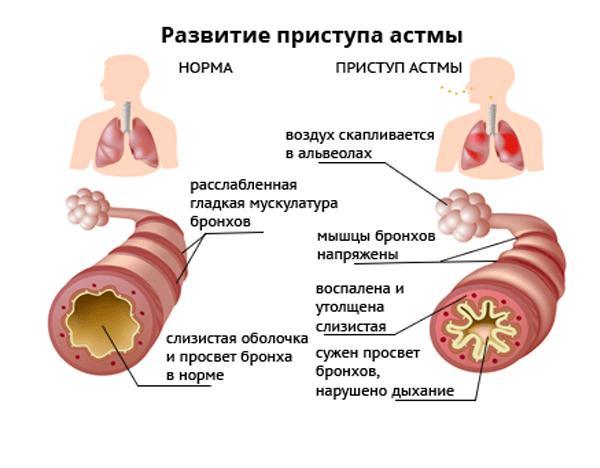 Снять астматический приступ в домашних условиях