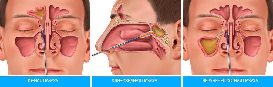 Как пробить нос при насморке в домашних условиях