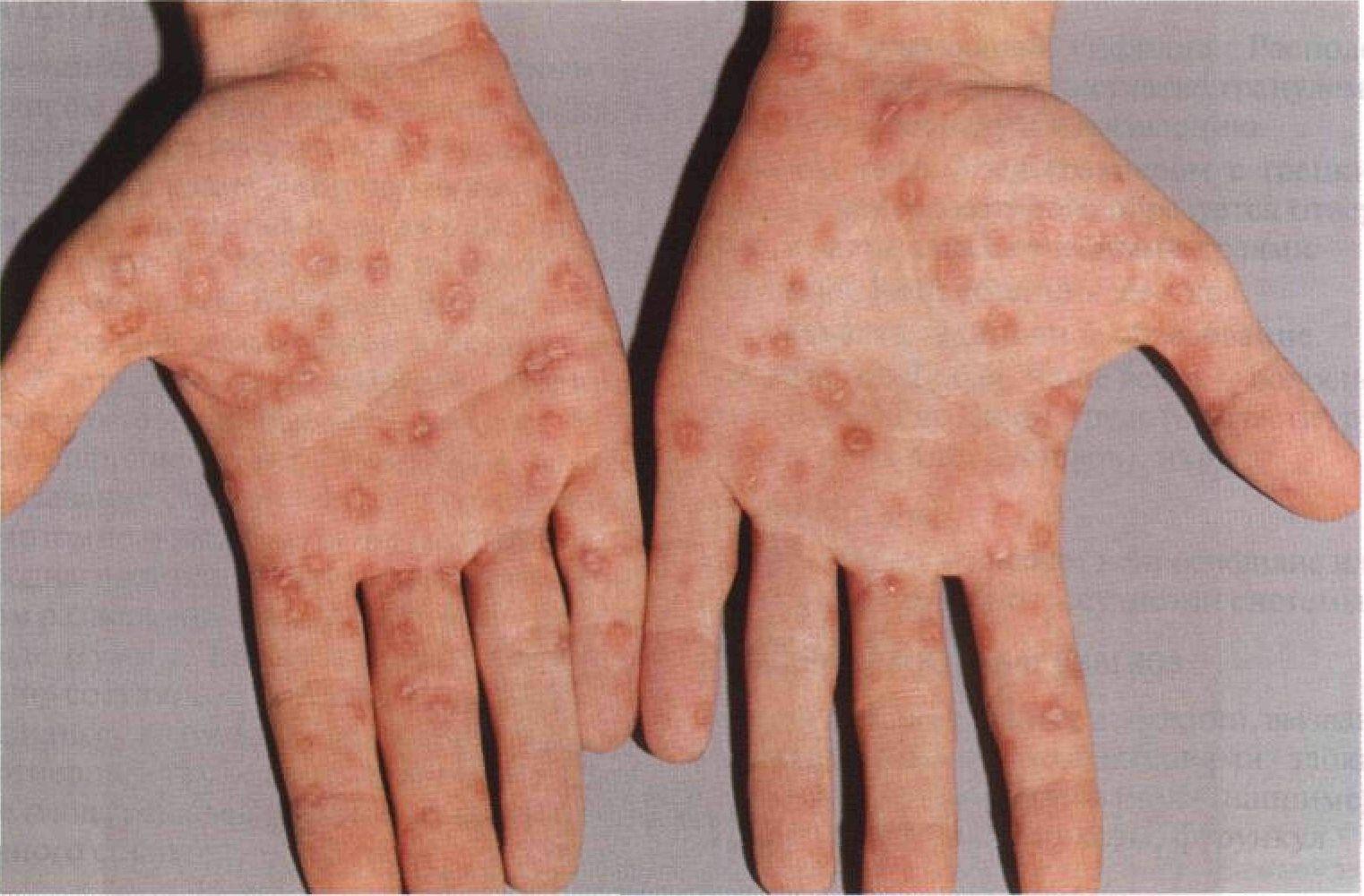 Как распознать сифилис: симптомы, стадии развития, диагностика